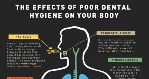 The Effects of Poor Dental Hygiene (Infographic) | Third Monk image 2