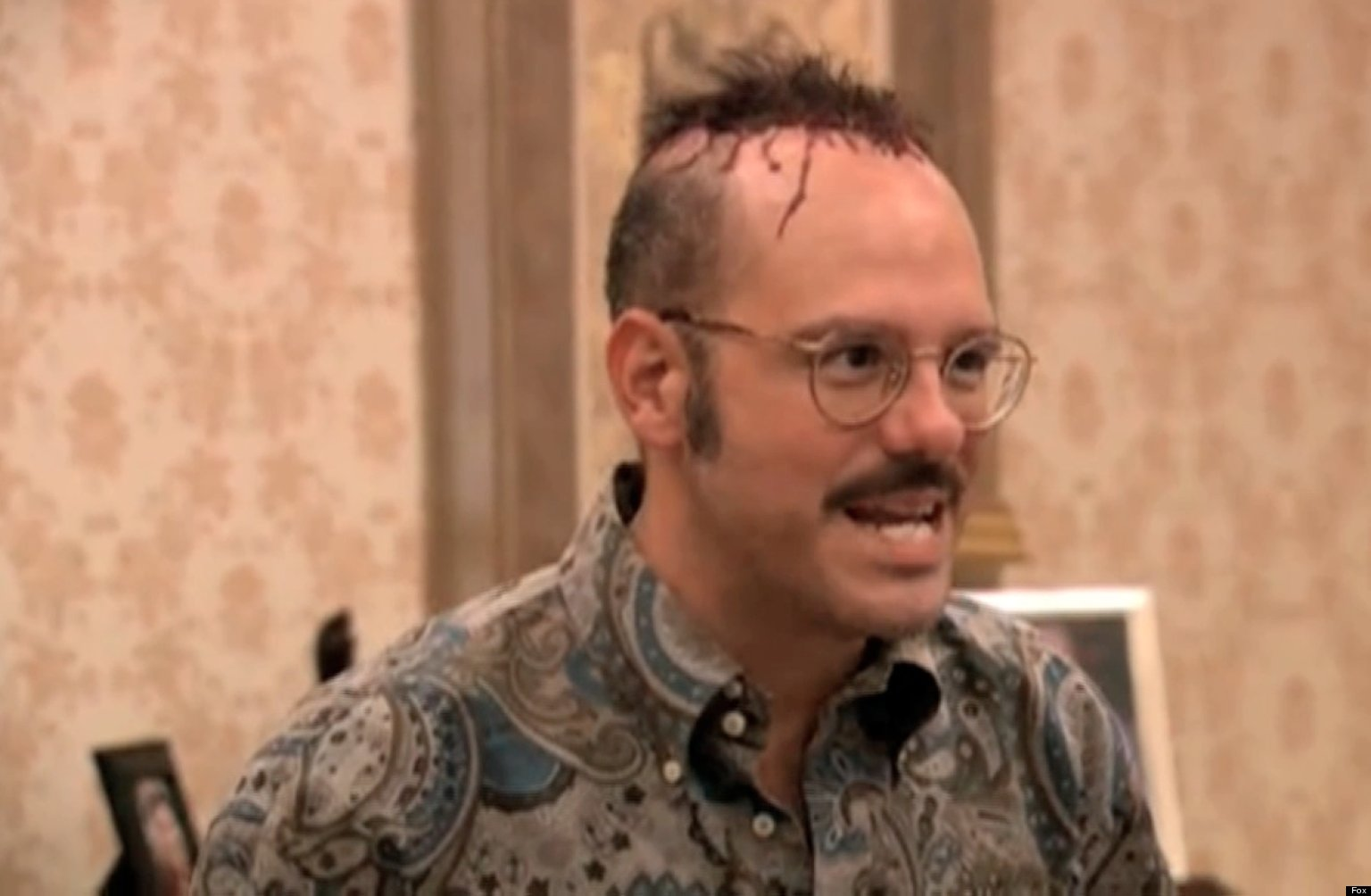 tobias hairplugs