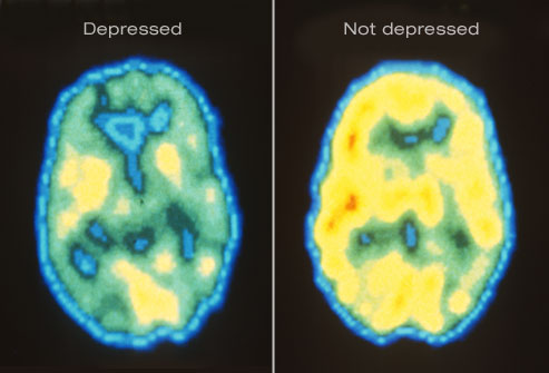 DailyMedicalinfo1_rm_pet_scan_of_depressed_brain
