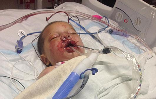 baby-injured-drug-war-grenade